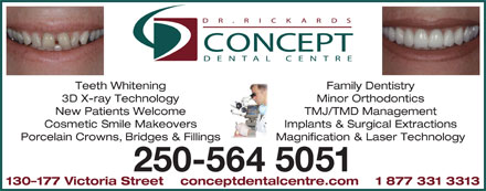 Concept Dental Centre (250-561-4586) - Annonce illustrée - Teeth Whitening Family Dentistry 3D X-ray Technology Minor Orthodontics New Patients Welcome TMJ/TMD Management Cosmetic Smile Makeovers Implants & Surgical Extractions Porcelain Crowns, Bridges & Fillings Magnification & Laser Technology 250-564 5051 130-177 Victoria Street    conceptdentalcentre.com    1 877 331 3313